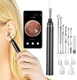 VITCOCO Otoskop Ultra Dünn Ohr Endoskop 5 Millionen Pixel HD WIFI Ohren Reinigung Endoskopkamera mit Ohrenschmalz entferner und 6 LED-Leuchten für iPhone/iPad, iOS, Android